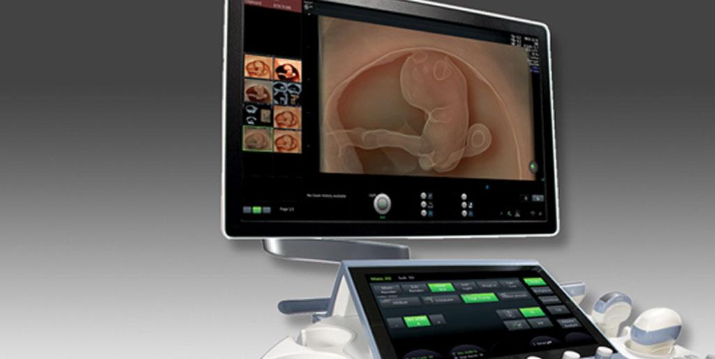 echographie de grossesse sur orléans, loiter